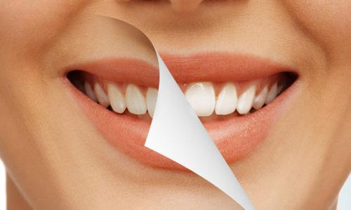 Cosmetic Dentistry in Warner Robins GA