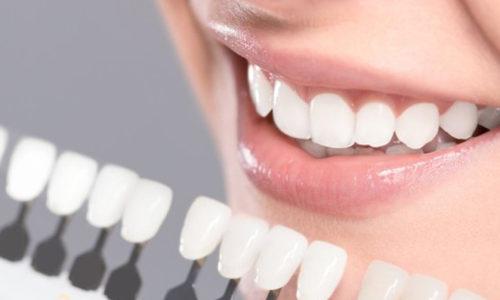 Dental Veneers in Warner Robins GA